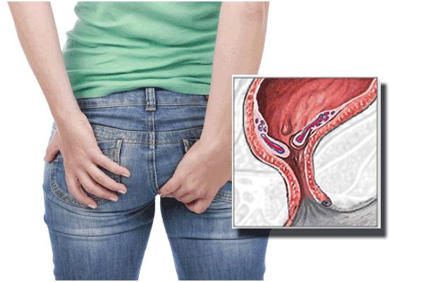 Koja hrana liječi hemoroide?